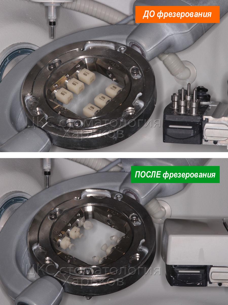 фрезерованиезубныхпротезовстоматологияхарьков