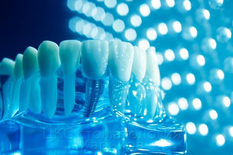 прогрессивная-зубная-имплантация
