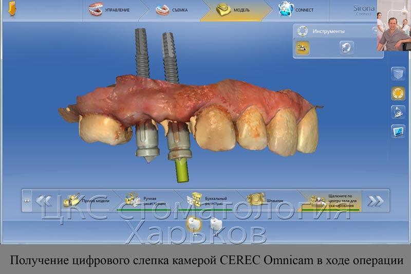 входеоперациипроводятсканированиезубовиустановленногоимплантата