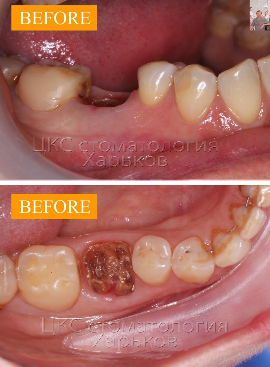 зубдоудаленияпереднемедленнойимплантацией