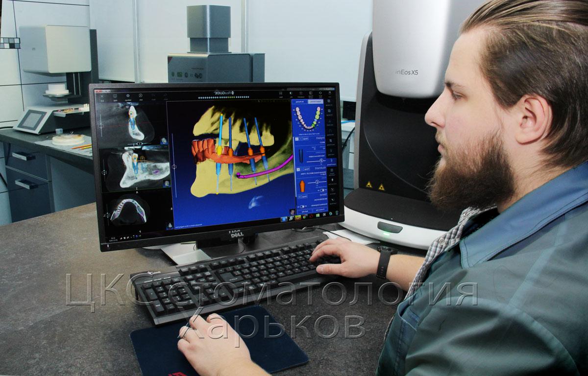 навигационнаяимплантациязубоввхарькове