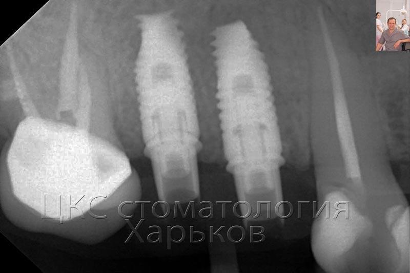 рентгенограммапослеимплантации
