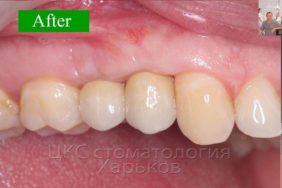 стоматологияхарьковпослеимплантации