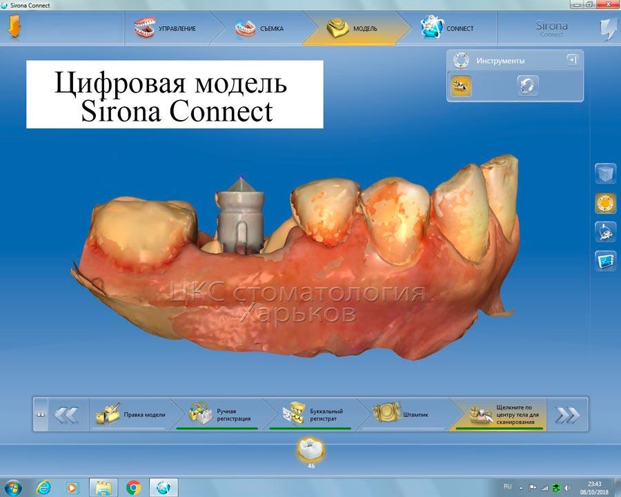 цифровойпротоколвзубнойимплантации