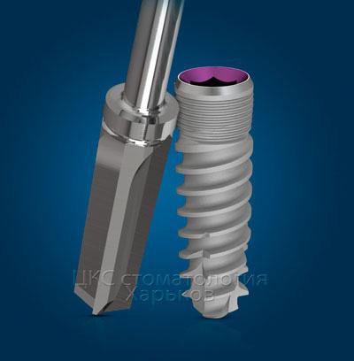 implantmisseven
