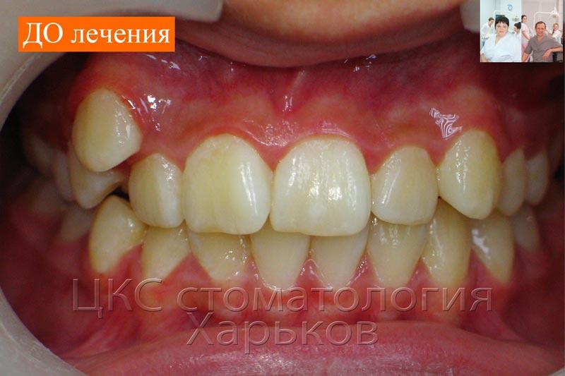 Кривые зубы до ортодонтического лечения
