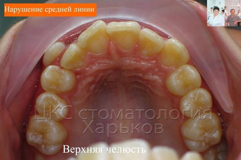 Дефицит места зубного ряда составляет 7 мм