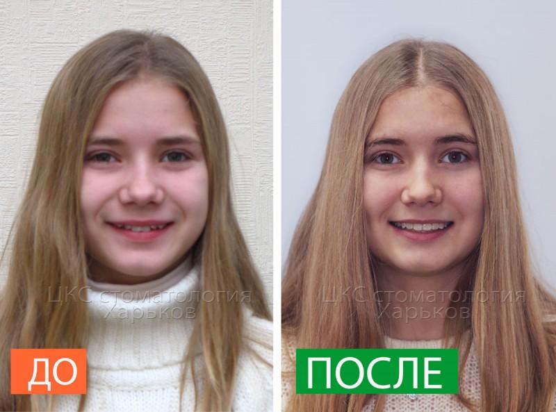 улыбка-до-и-после-лечения-брекетами