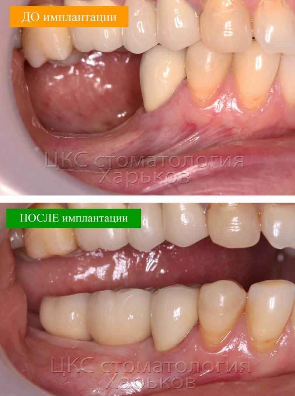 до-и-после-зубной-имплантации