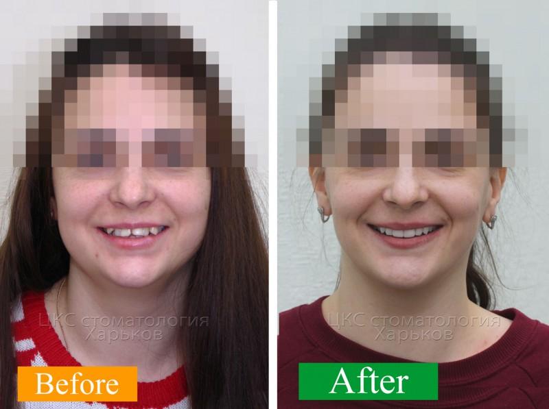 улыбка-до-и-после-лечения