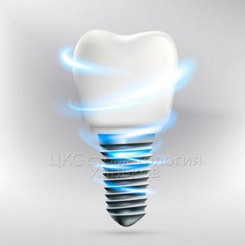 зубная-имплантация-в-стоматологии-харьков