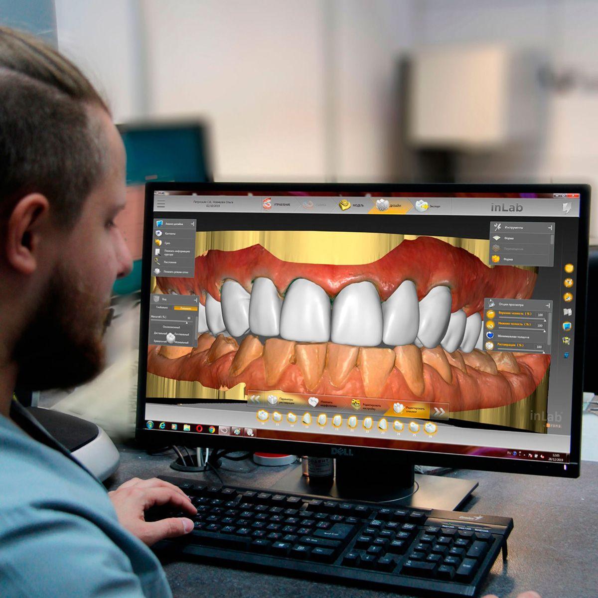 Зуботехнические работы в цифровом протколе Sirona